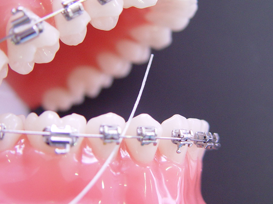 Higiene Oral en Cali