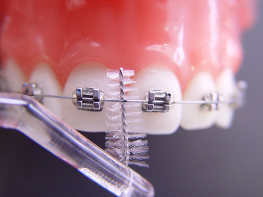 Higiene Oral en Cali Valle Colombia3